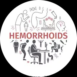We treat hemorrhoids